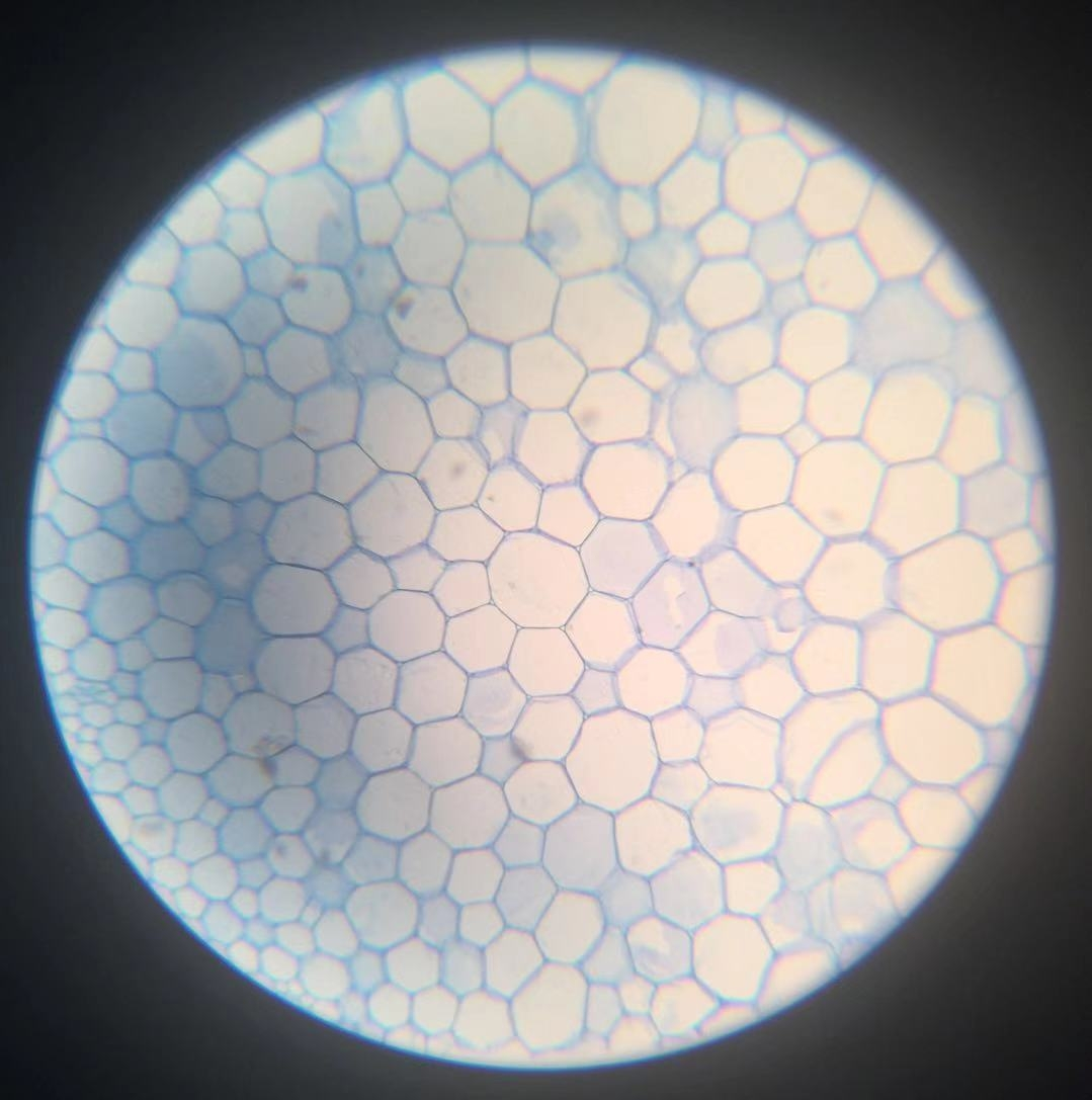 Parenchyma - 100x magnification