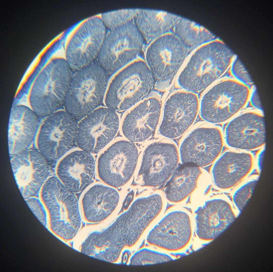 Spermary Sec W.M #1 - 100x magnification
