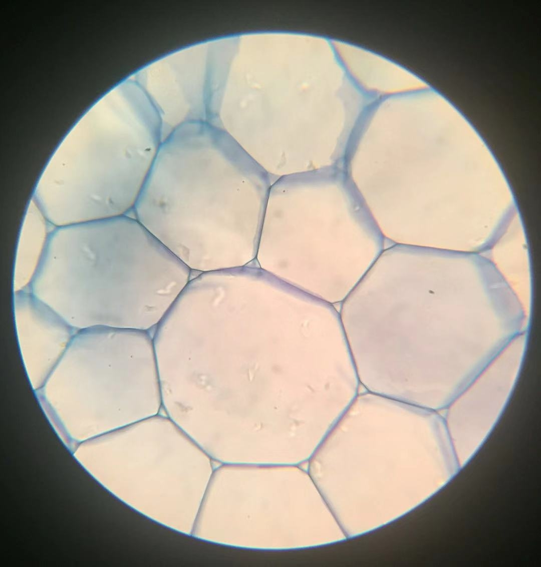 Parenchyma- 400x magnification