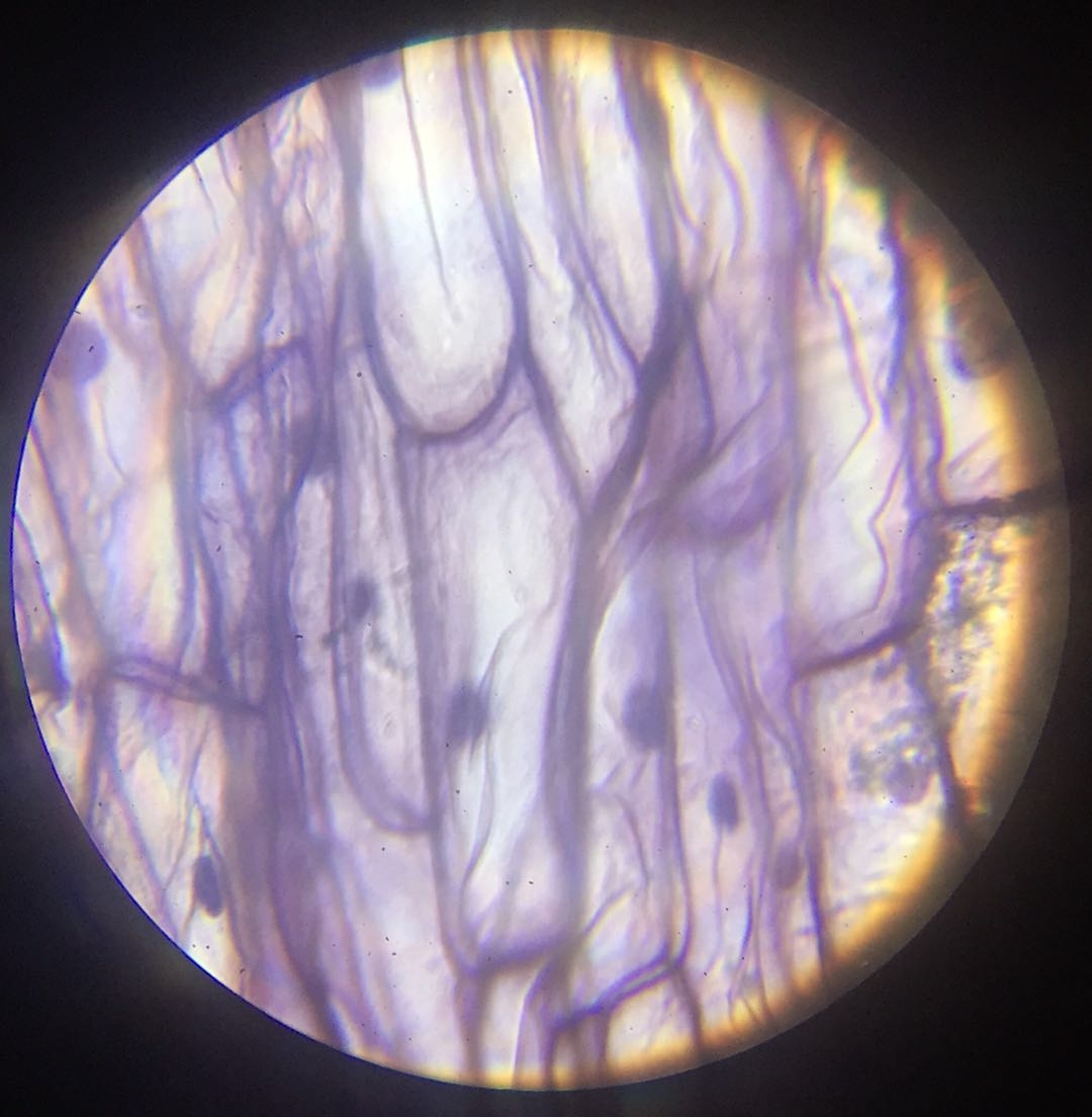 Epidermis W.M #1 - 400x magnification