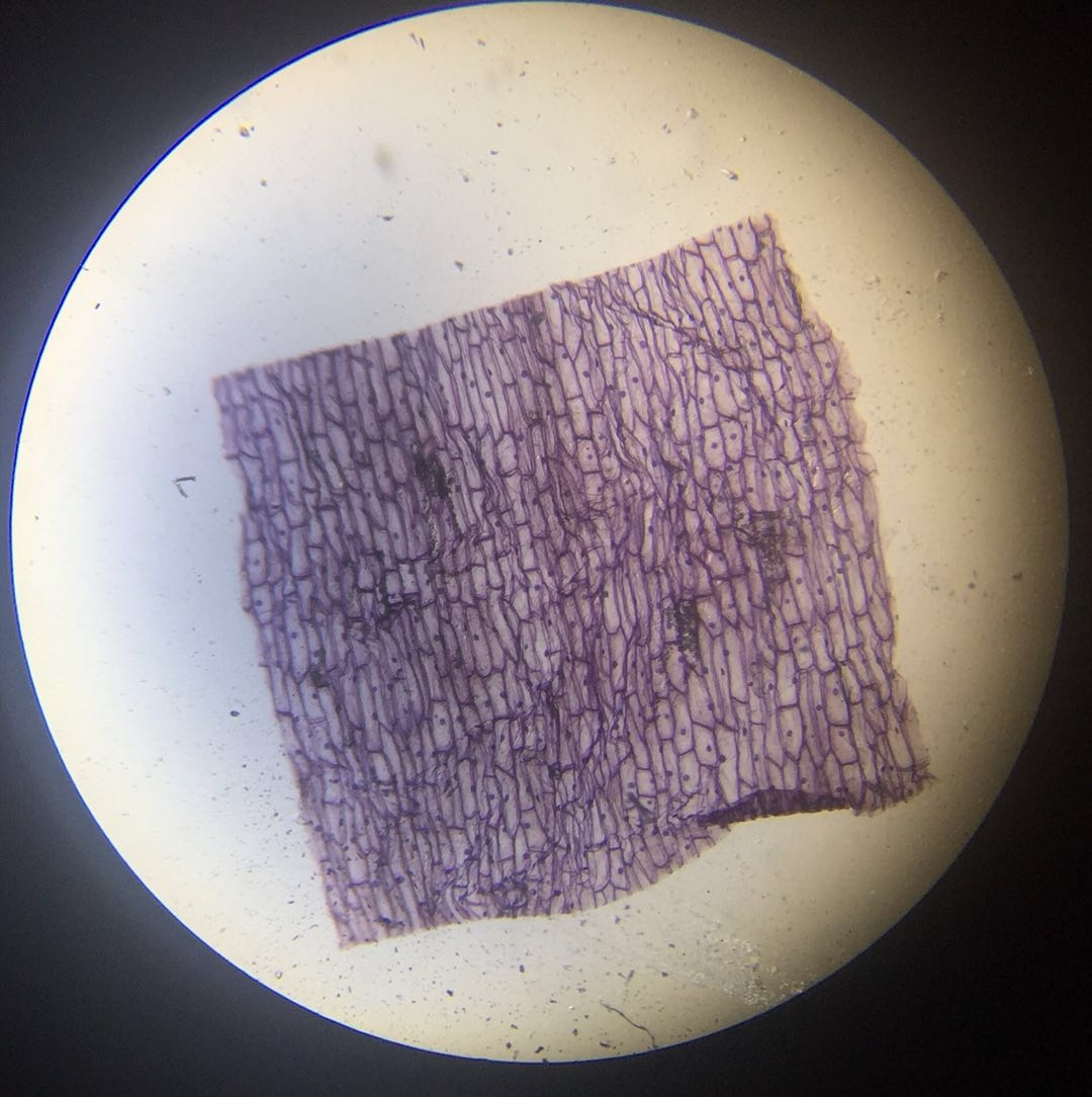 Epidermis W.M #1 - 40x magnification