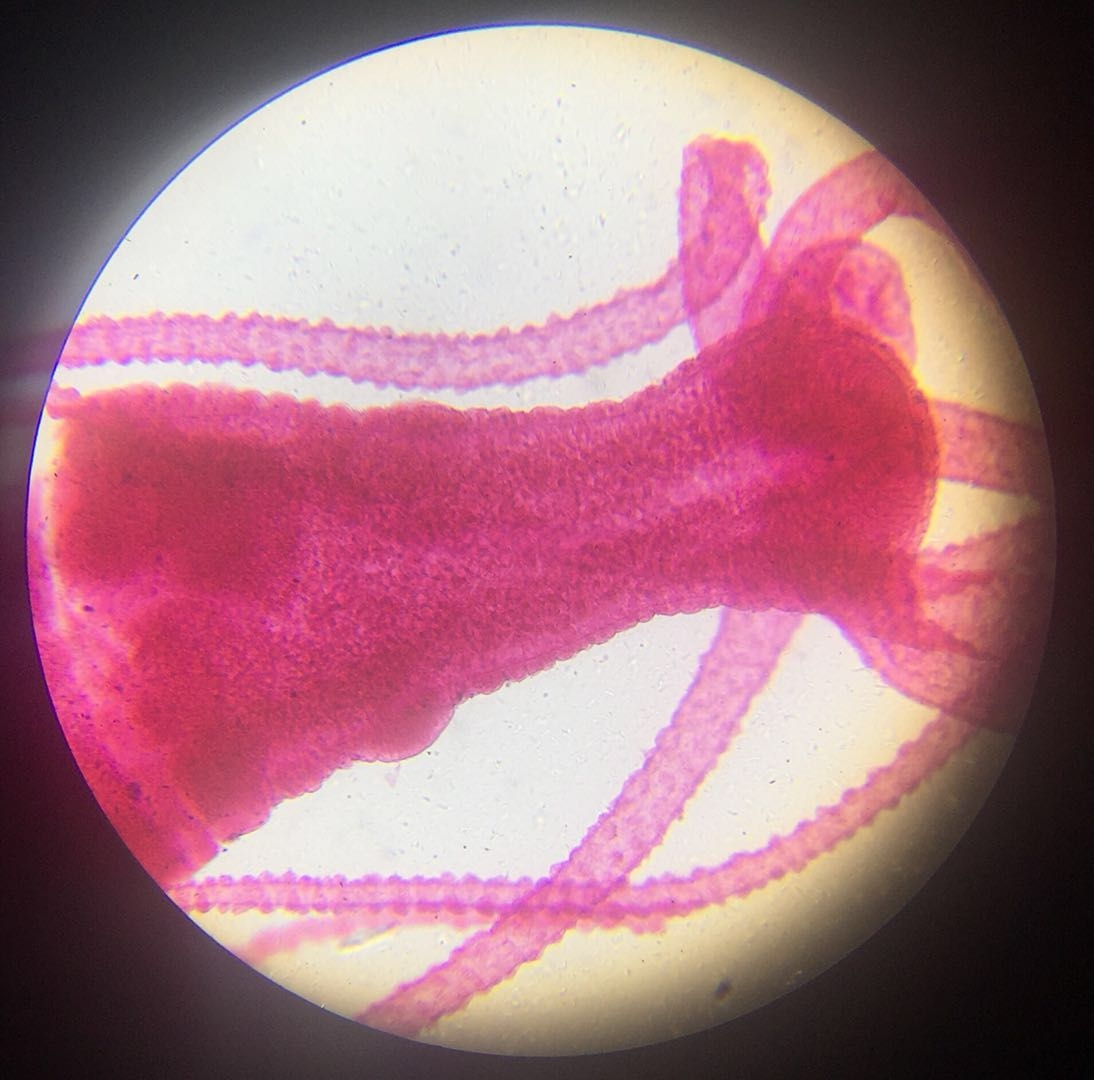 Hydra - 100x magnification