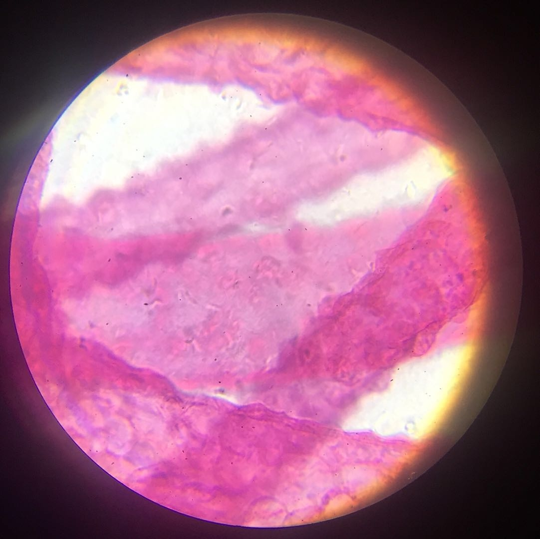Hydra - 400x magnification